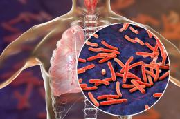 Imagem: O estudo identificou e caracterizou uma nova proteína no agente causador da tuberculose humana (Imagem: divulgação)